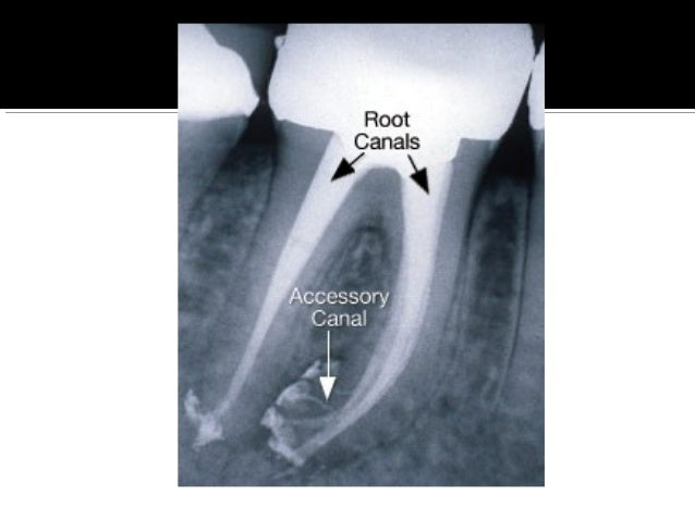  Initial preparation is made in the middle of the fissure. The cavity is then extended buccally and palatally.  NB : Mar...