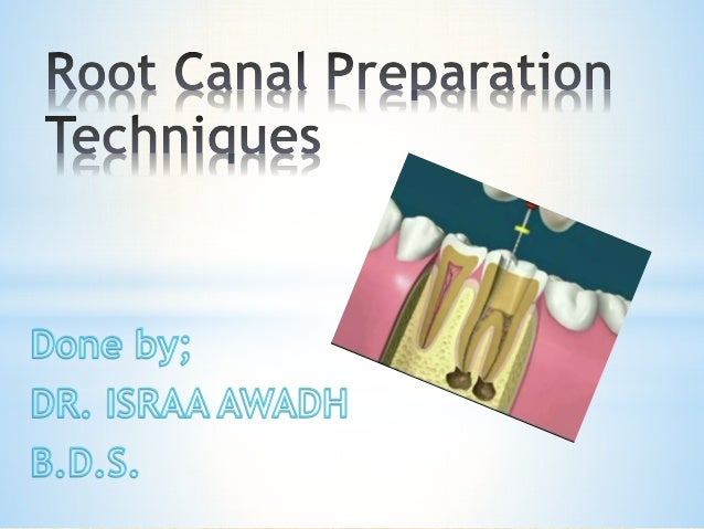 *Objectives of Root Canal Preparation.  *The principles of shaping.  *Standardized technique  *Step back technique  *Modif...
