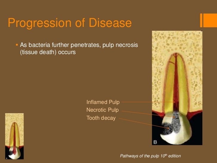 Progression of Disease  Bacteria penetrate further causing   infection and destruction of the pulp                       ...