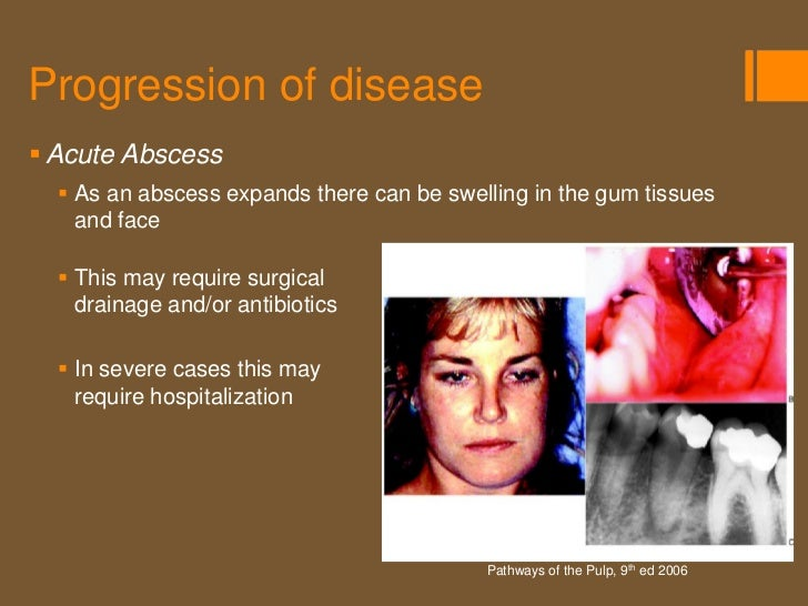 Progression of disease Chronic Abscess   Sometimes when an abscess    expands it burrows through the    bone and exits t...