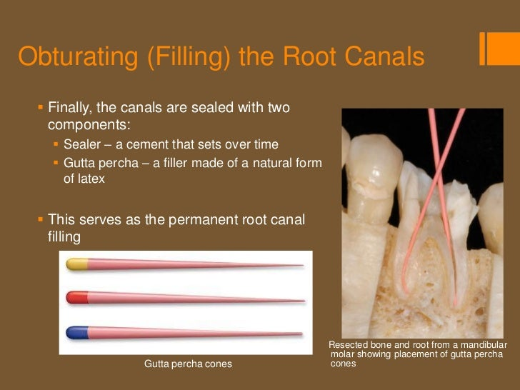 Root Canal Treatment Completed  Upon completion of the root canal treatment, a temporary filling is   placed over the sea...