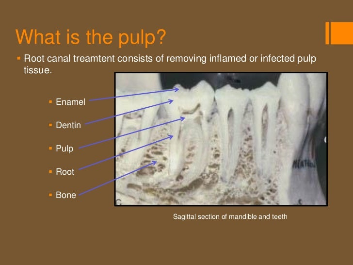 Why is a root canal necessary?Deep tooth decay (cavity)A cracked toothTraumatic dental injuryElective (for added reten...