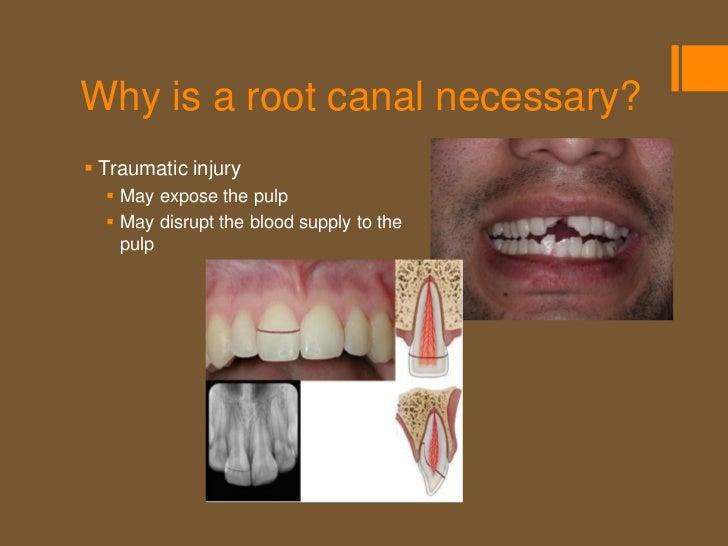 Why is a root canal necessary?Elective – an elective root canal may be recommended:    If a substantial portion of your ...