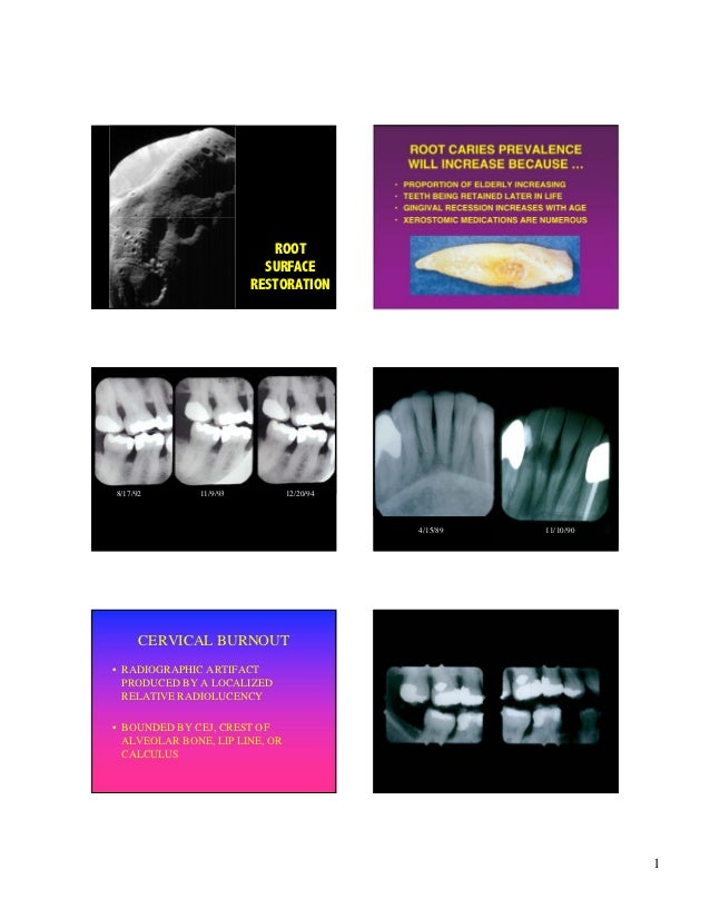 ROOT CARIES PREVALENCE                                               WILL INCREASE BECAUSE …                              ...