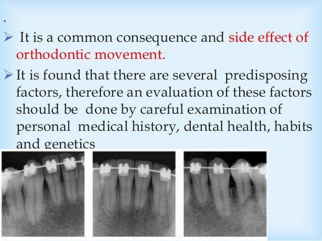 Orthodontics Management of root resorption _ Departement orthodo…