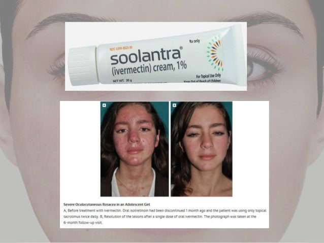 An Update On Rosacea Treatment