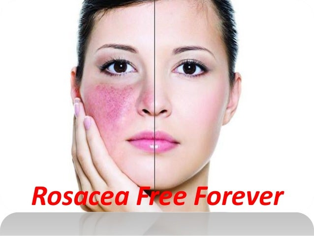 Natural Ways To Help Acne Rosacea
