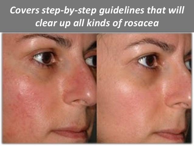 All Natural Rosacea Treatment
