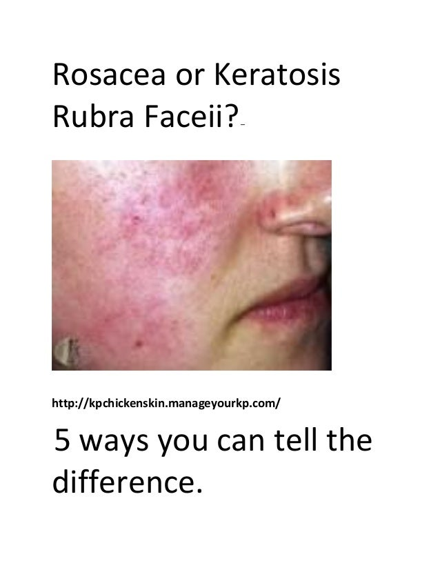 Face always red not rosacea