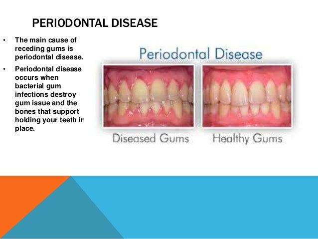 What Causes a Receding Gum Lines