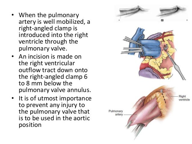 • This incision is then extended transversely across the right ventricular outflow tract. • The endocardium on the posteri...
