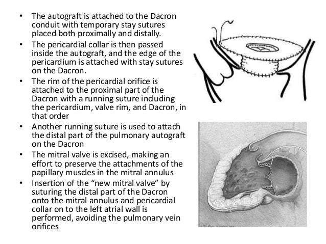 • In patients with congenital stenosis, the Dacron tube does not allow the annulus of the mitral valve to grow with the ch...