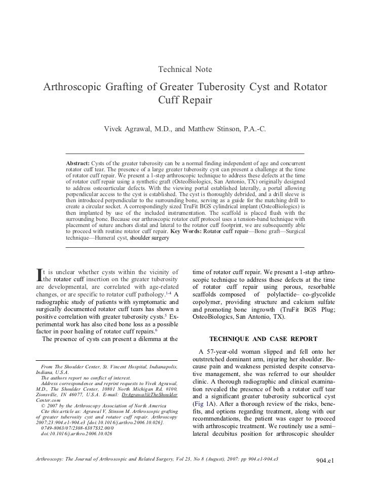 Technical Note   Arthroscopic Grafting of Greater Tuberosity Cyst and Rotator                           Cuff Repair       ...