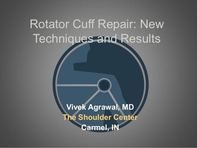 Rotator Cuff Repair: NewTechniques and ResultsVivek Agrawal, MDThe Shoulder CenterCarmel, IN