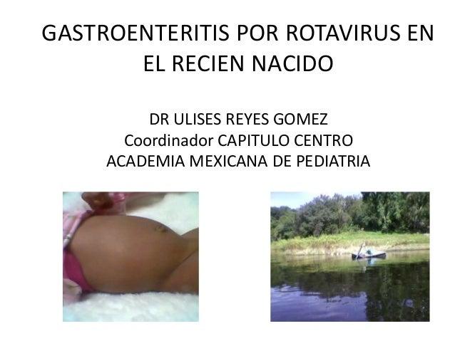 GASTROENTERITIS POR ROTAVIRUS ENEL RECIEN NACIDODR ULISES REYES GOMEZCoordinador CAPITULO CENTROACADEMIA MEXICANA DE PEDIA...