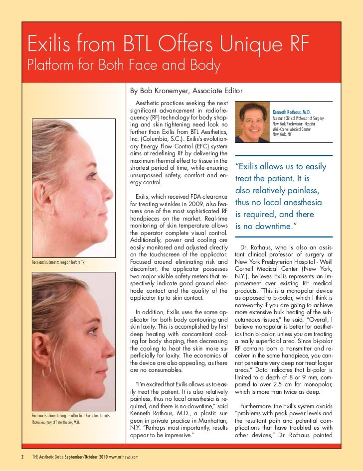 Exilis from BTL Offers Unique RF    Platform for Both Face and Body                                                       ...