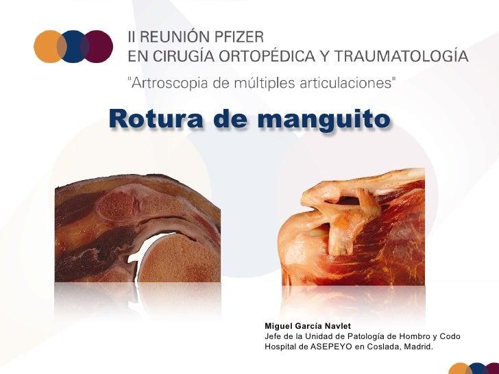 Rotura de manguito         Miguel García Navlet         Jefe de la Unidad de Patología de Hombro y Codo         Hospital d...