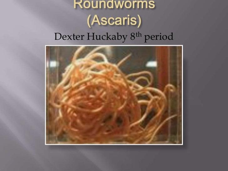 ascariasis roundworms