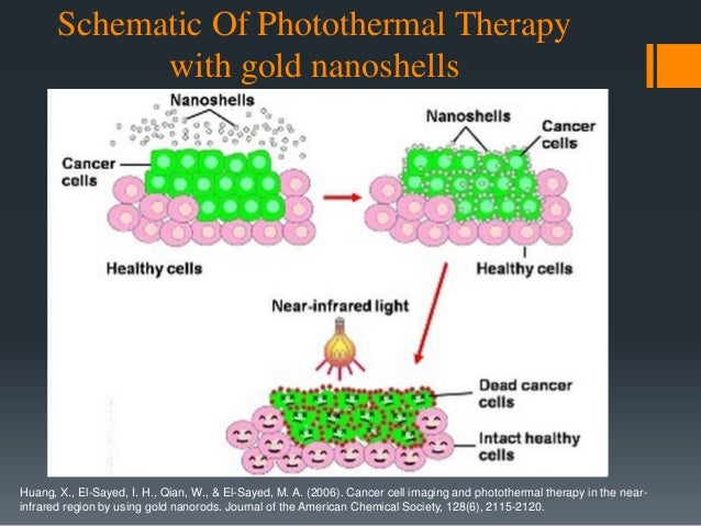 Photoacoustic imaging and photothermal cancer therapy using BR nanoparticles