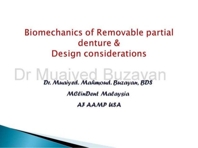 Rpd biomechanics   principles of levers design consideration 4th year