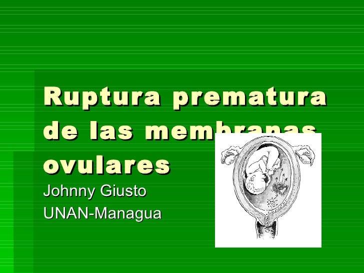 Ruptura prematura de las membranas ovulares Johnny Giusto UNAN-Managua