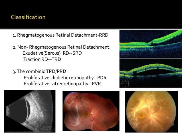Rhegmatogenous Retinal Detachment --RRD