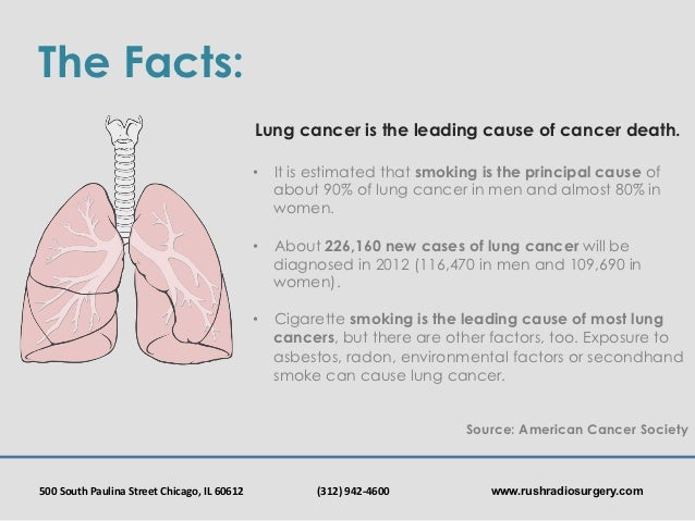 Rush Radiosurgery Lung Cancer Awareness Month