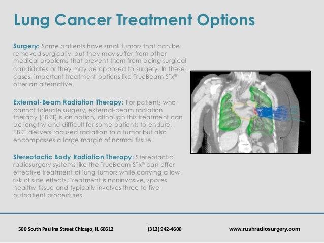 Rush Radiosurgery: Lung Cancer Awareness Month