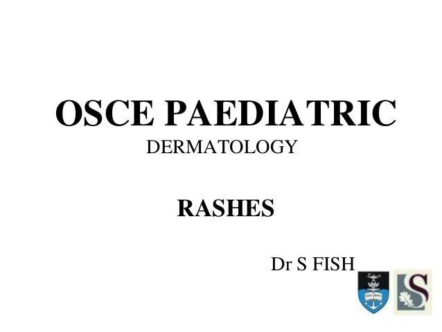 OSCE PAEDIATRIC DERMATOLOGY RASHES Dr S FISH