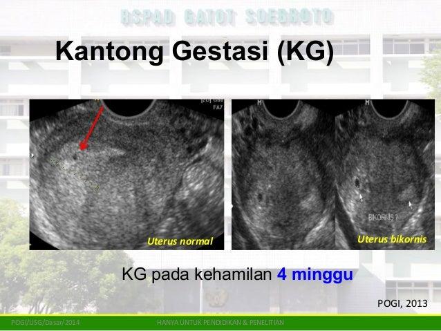Tatalaksana Emergensi Kehamilan Ektopik Bagi Dokter Umum Rspad 2014
