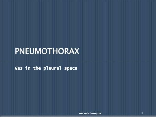 PNEUMOTHORAX Gas in the pleural space www.medicinemcq.com 1