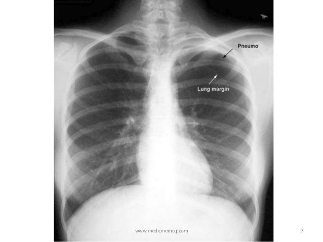 Pneumothorax   638 x 479 jpeg 42kB