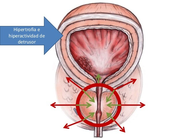 Hipertrofie benigna de prostata simptome