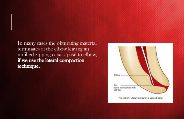 Endodontic mishaps during RCT