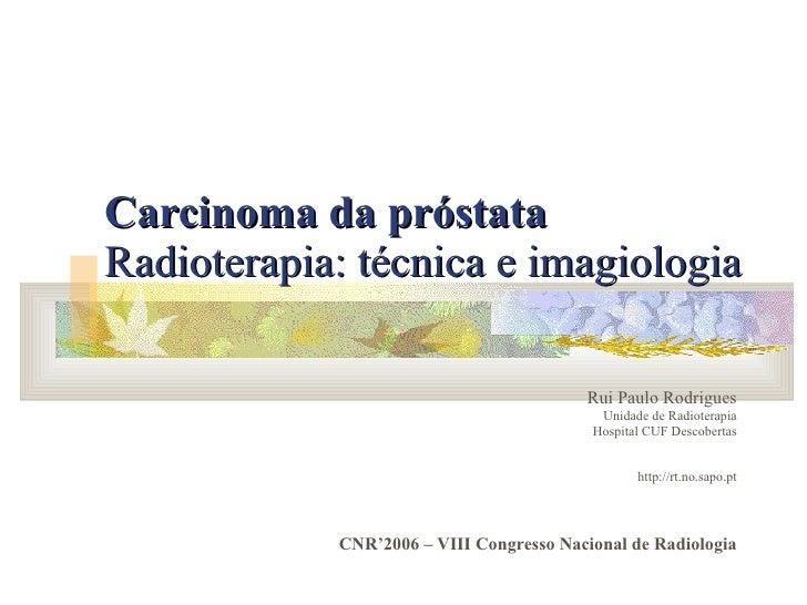 Carcinoma da próstata   Radioterapia: técnica e imagiologia   Rui Paulo Rodrigues Unidade de Radioterapia Hospital CUF Des...