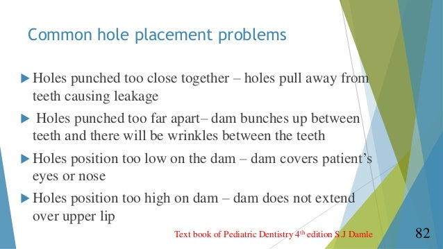 Rubber Dam In Endodontics