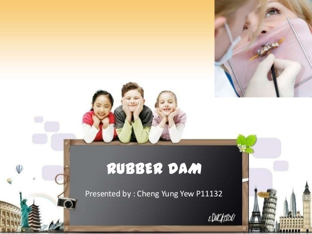 RUBBER DAM Presented by : Cheng Yung Yew P11132