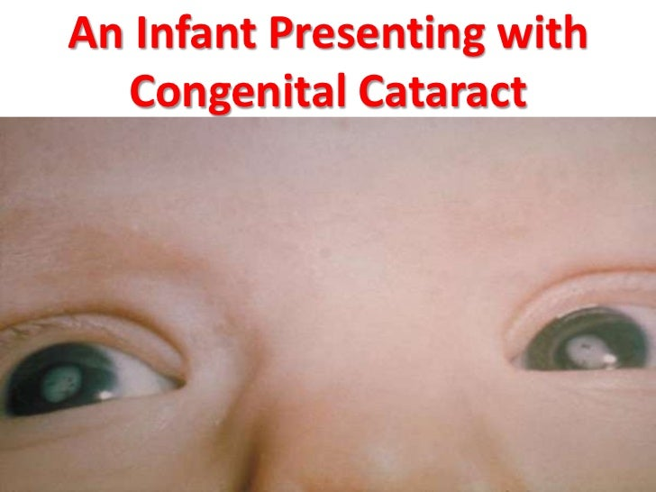 88a7a454003 An Infant Presenting with Congenital Cataract Dr.T.V.Rao MD 19 ...