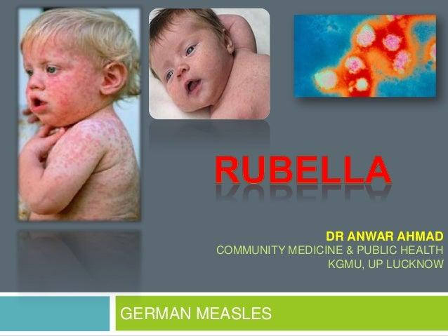 GERMAN MEASLES DR ANWAR AHMAD COMMUNITY MEDICINE & PUBLIC HEALTH KGMU, UP LUCKNOW