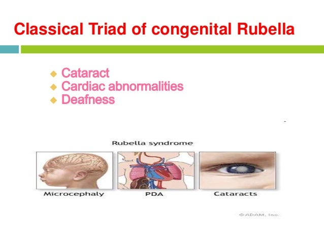 the symptoms of congenital rubella syndrome Rubella rna and igm were detected in both samples, confirming the diagnosis of  congenital rubella infection the clinical symptoms also confirmed this as a.
