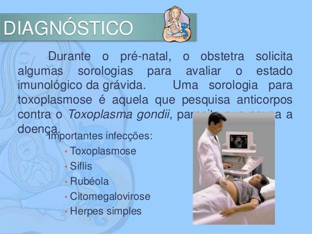 Toxoplasmose exame
