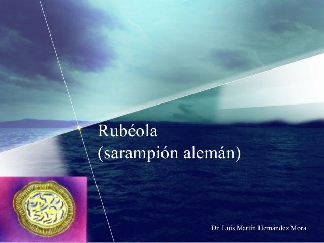 Rubéola (sarampión alemán)  Dr. Luis Martín Hernández Mora