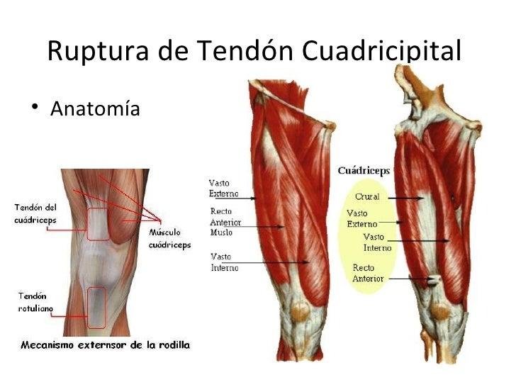 Ruptura de tendón cuadricipital