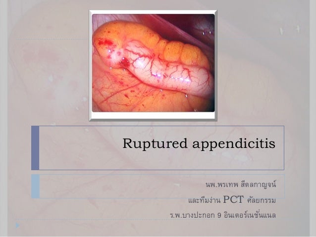 Rupture appendicitis