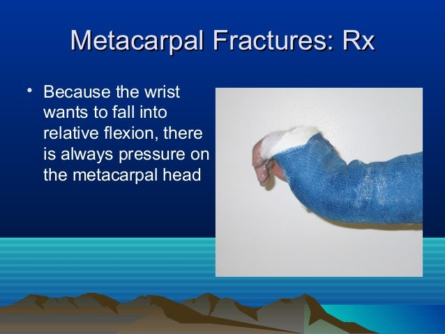 Rural Fracture Care