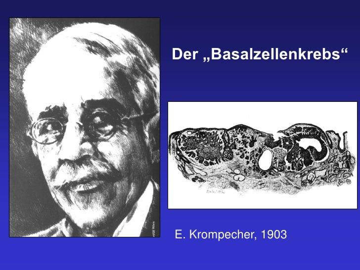 """Der """"Basalzellenkrebs""""E. Krompecher, 1903"""