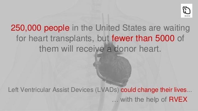 The Left Ventricular Assist Device (LVAD) is an artificial pump implanted in the left ventricle to replace or support the ...