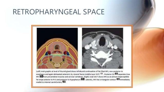 CT anatomy of Neck Spaces RV