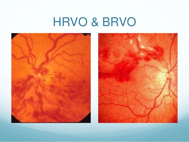 Branch Retinal Vein Occlusion - webeye.ophth.uiowa.edu