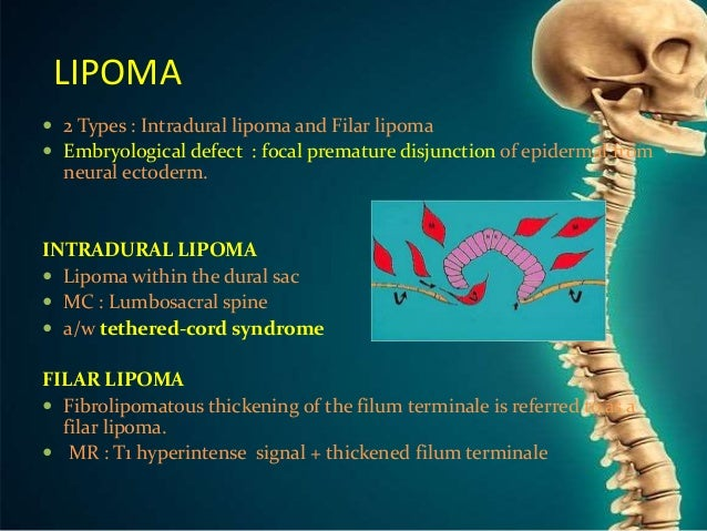 Congenital Anomalies Of Spine And Spinal Cord Here we report a case of sft occurring in the filum terminale. congenital anomalies of spine and